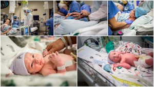 photo collage of woman preparing for csection delivery and twins after birth